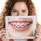 انواع ارتودنسی دندان