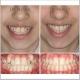 ارتودنسی ثابت دو فک با کشیدن دندان