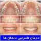 درمان نامرتبی دندانها