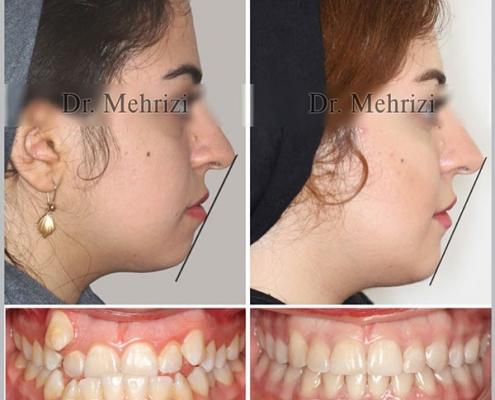 ارتودنسی ثابت دو فک همراه کشیدن چهار دندان