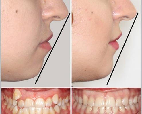 ارتودنسی ثابت دو فک با کشیدن چهار دندان