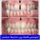 ارتودنسی فاصله بین دندان ها (دیاستم)