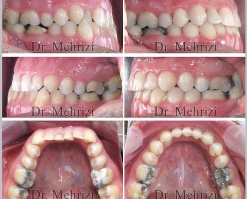 درمان بهم ریختگی دندان ها