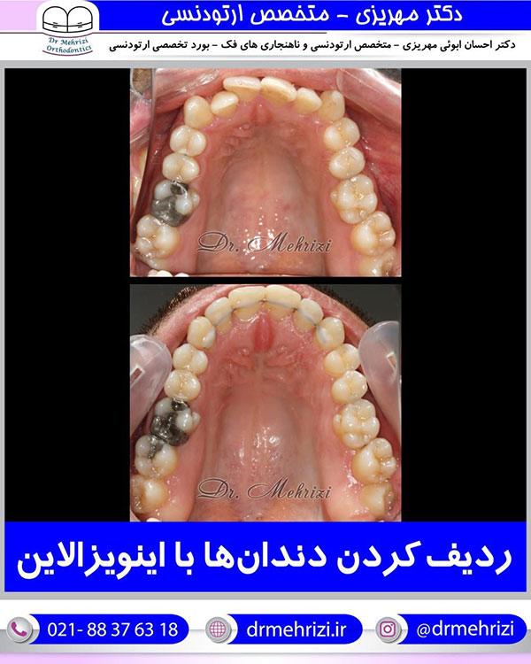 ردیف کردن دندان ها با اینویزالاین