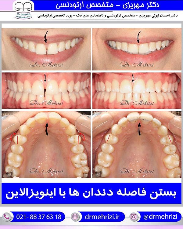 بستن فاصله دندان ها با اینویزالاین