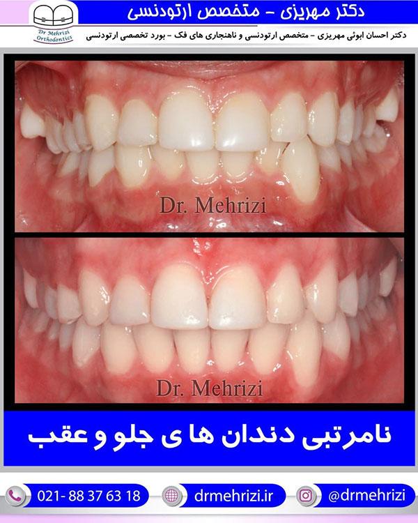 نامرتبی دندان های جلو و عقب
