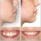 درمان ارتودنسی بیرون زدگی دندان ها