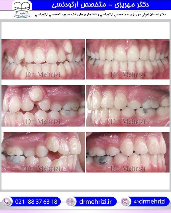 ارتودنسی دندان بیرون زده