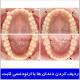 ردیف کردن دندان ها با ارتودنسی ثابت