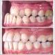 درمان ناهنجاری دندان و فک