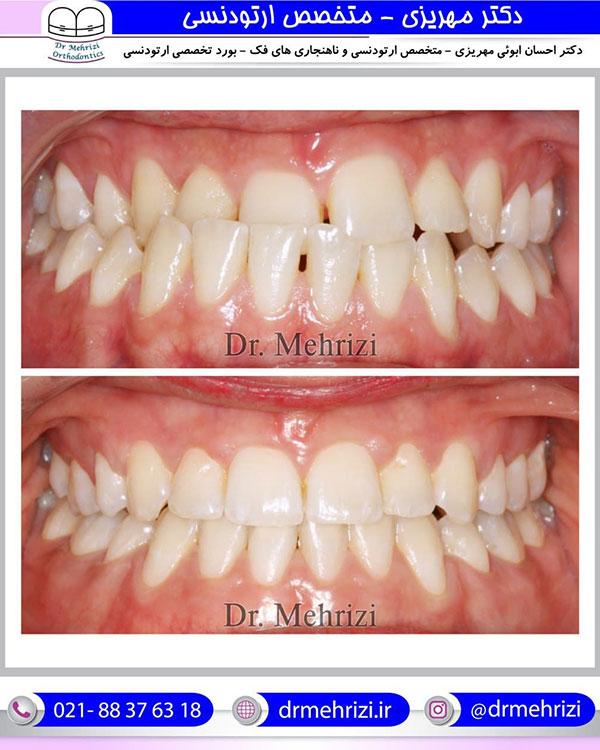درمان ارتودنسی ثابت دو فک با کشیدن دو دندان
