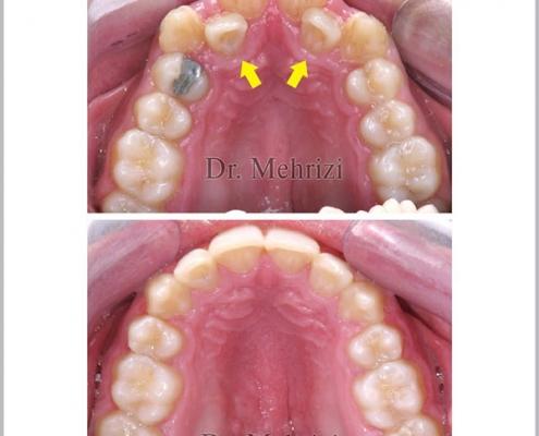 درمان بهم ریختگی دندانها