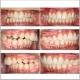 درمان ارتودنسی ثابت بدون کشیدن دندان