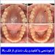 ارتودنسی با کشیدن یک دندان از فک بالا