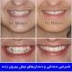 نامرتبی دندانی و دندان های نیش بیرون زده