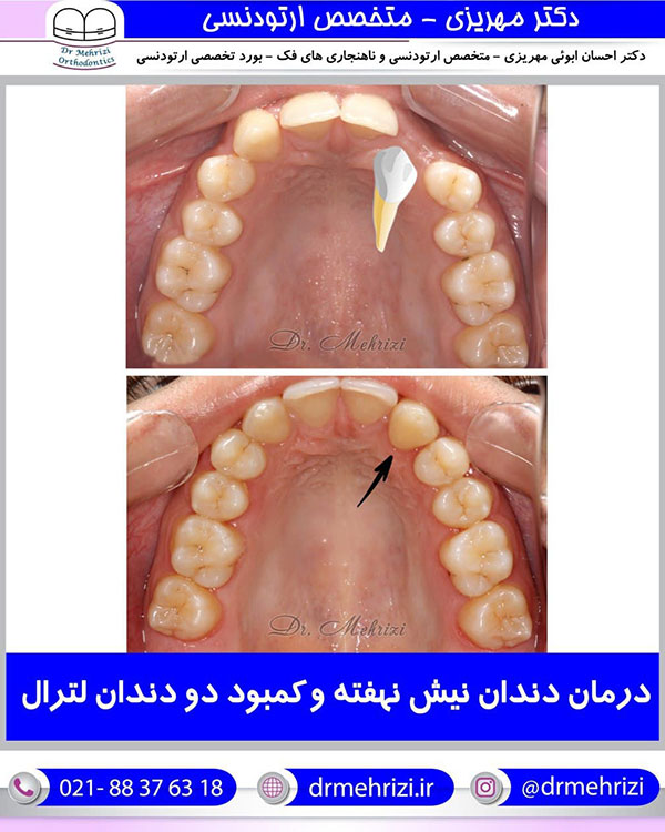 درمان دندان نیش نهفته و کمبود دو دندان لترال
