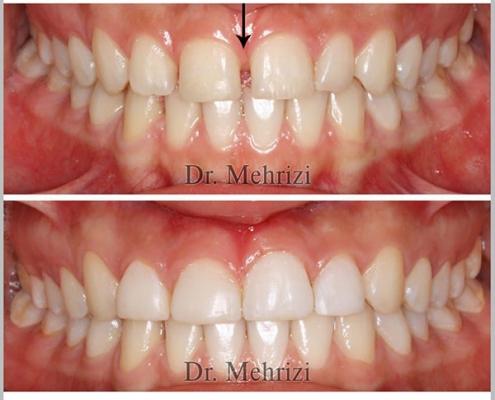 درمان فاصله میان دندانهای جلو