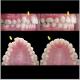 ارتودنسی جهت جلو بودن دندان های فک بالا