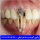 پایین آوردن دندان نیش جهت افزایش طول تاج