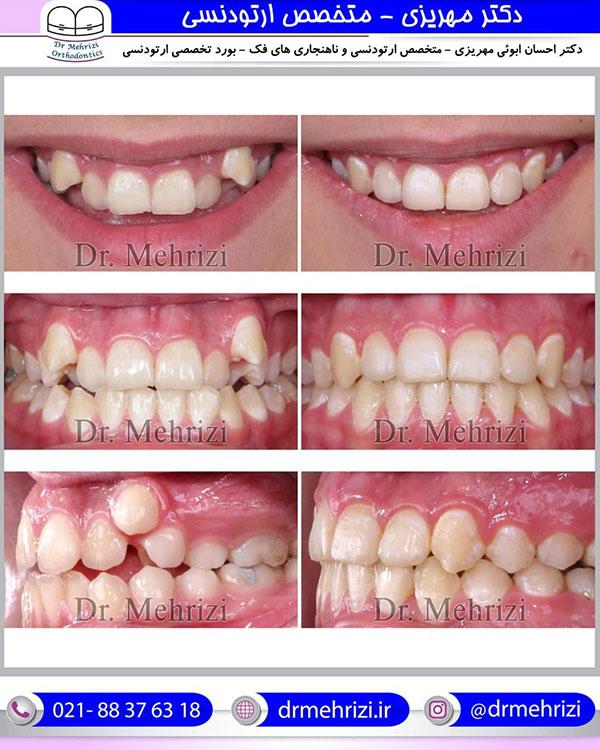 درمان ارتودنسی ثابت دو فک بدون کشیدن دندان