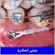درمان ارتودنسی با مینی اسکرو