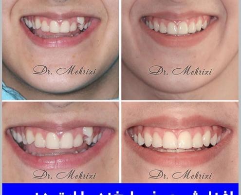 افزایش عرض لبخند با ارتودنسی