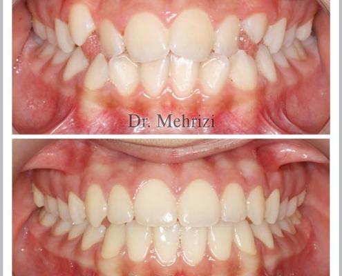 درمان بهم ریختگی و کمبود فضای دندانها