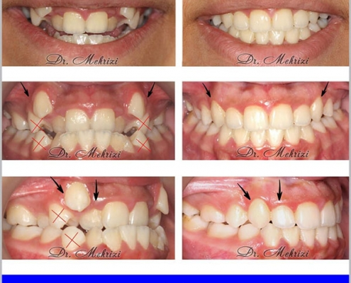 ارتودنسی با کشیدن دندان