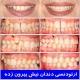 ارتودنسی دندان نیش بیرون زده