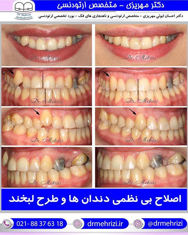 اصلاح بی نظمی دندانها و طرح لبخند