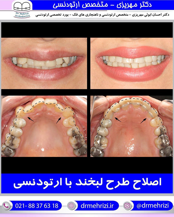 اصلاح طرح لبخند با ارتودنسی