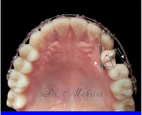 اصلاح چرخش دندانی