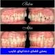 بستن فضای دندانهای غایب
