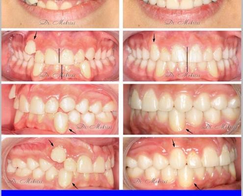 تصاویر قبل و بعد از ارتودنسی