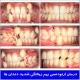 درمان ارتودنسی بهم ریختگی شدید دندانها