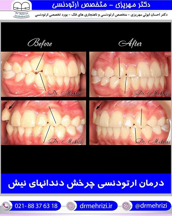 درمان ارتودنسی چرخش دندانهای نیش