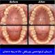 درمان ارتودنسی چرخش 180 درجه دندان