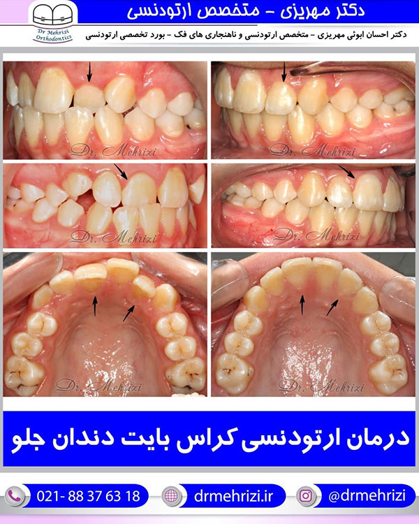 درمان ارتودنسی کراس بایت دندان جلو