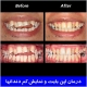 درمان اپن بایت و نمایش کم دندانها