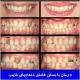 درمان با بستن فضای دندانهای غایب