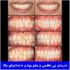 درمان بی نظمی و جلو بودن دندانهای بالا