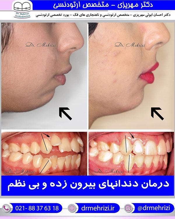 درمان دندانهای بیرون زده و نامنظم