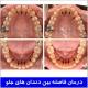 درمان فاصله بین دندانهای جلو