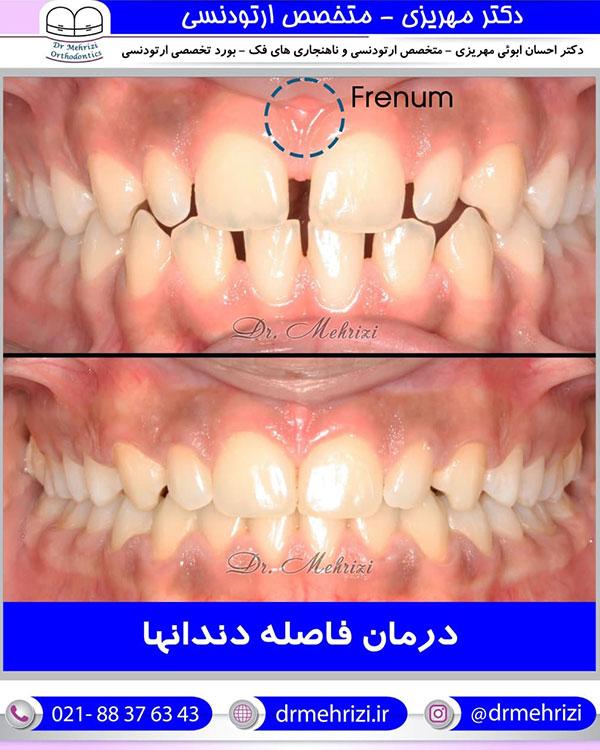 درمان فاصله دندان ها