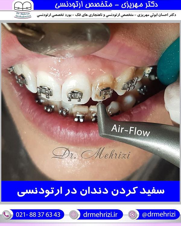 سفید کردن دندان در ارتودنسی