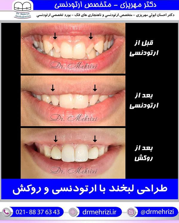 طراحی لبخند با ارتودنسی و روکش